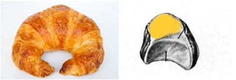 Left: Croissant Right: Left lunate, articulation for the triquetral highlighted in yellow.