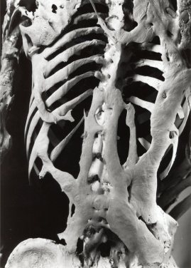 Skeleton with Fibrodysplasia Ossificans Progressiva, Mütter Museum
