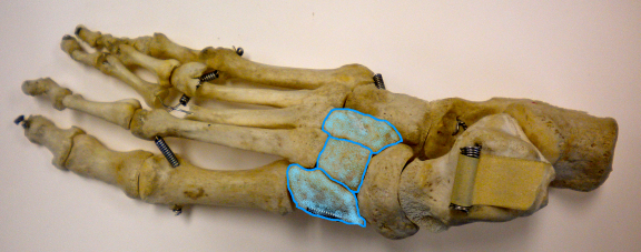 The cuneiforms are highlighted in blue