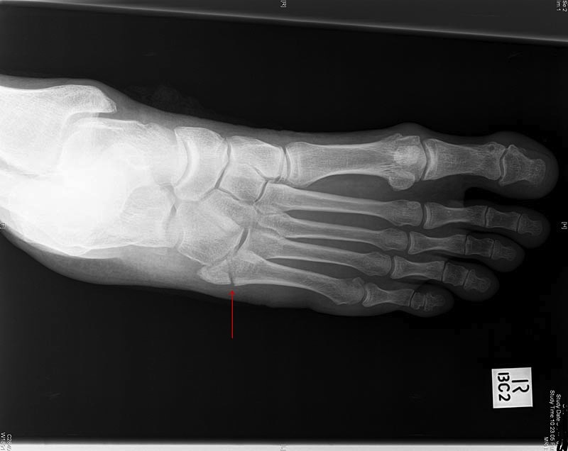 Worst foot. Get it? (Avulsion fracture, 5th MT)