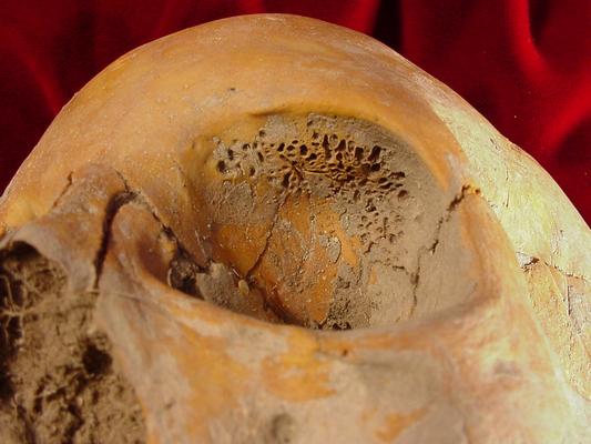 Porotic Hyperostosis And Cribra Orbitalia Bone Broke