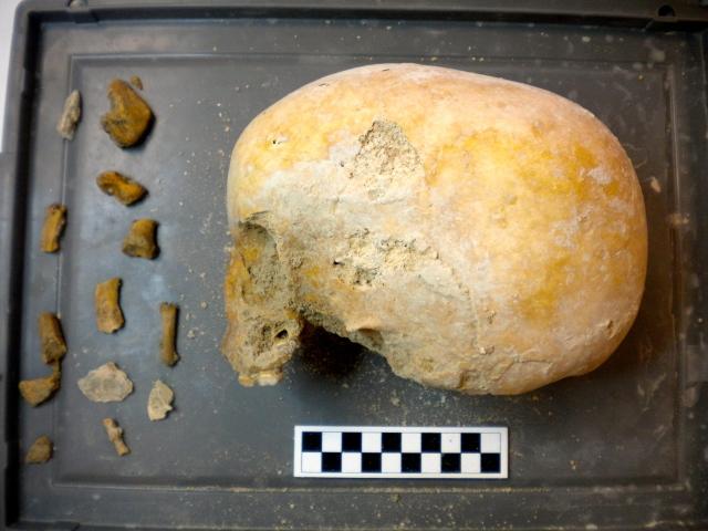 Microexcavated cranium