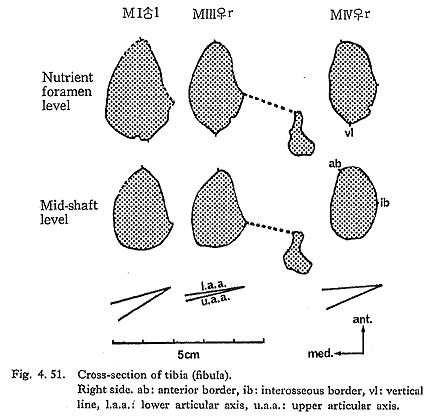 Tibial shaft cross sections