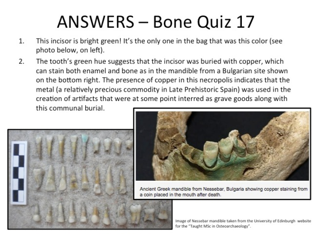 Answers Bone Quiz 17