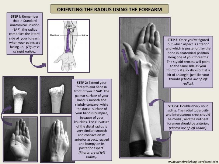 That S So Rad Identifying And Siding The Radius Bone Broke