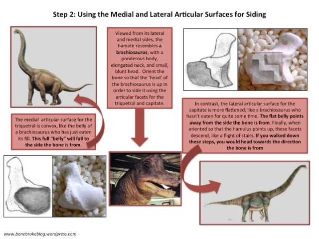 Step 2: Using the Medial and Lateral Articular Surfaces for Siding