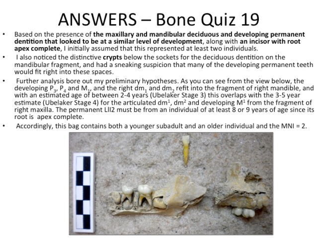 Bone Quiz 19 - Answers
