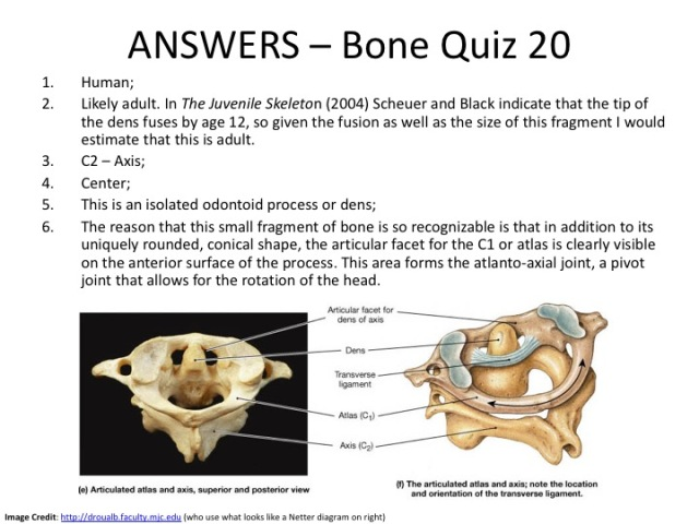 Bone Quiz 20 Answers
