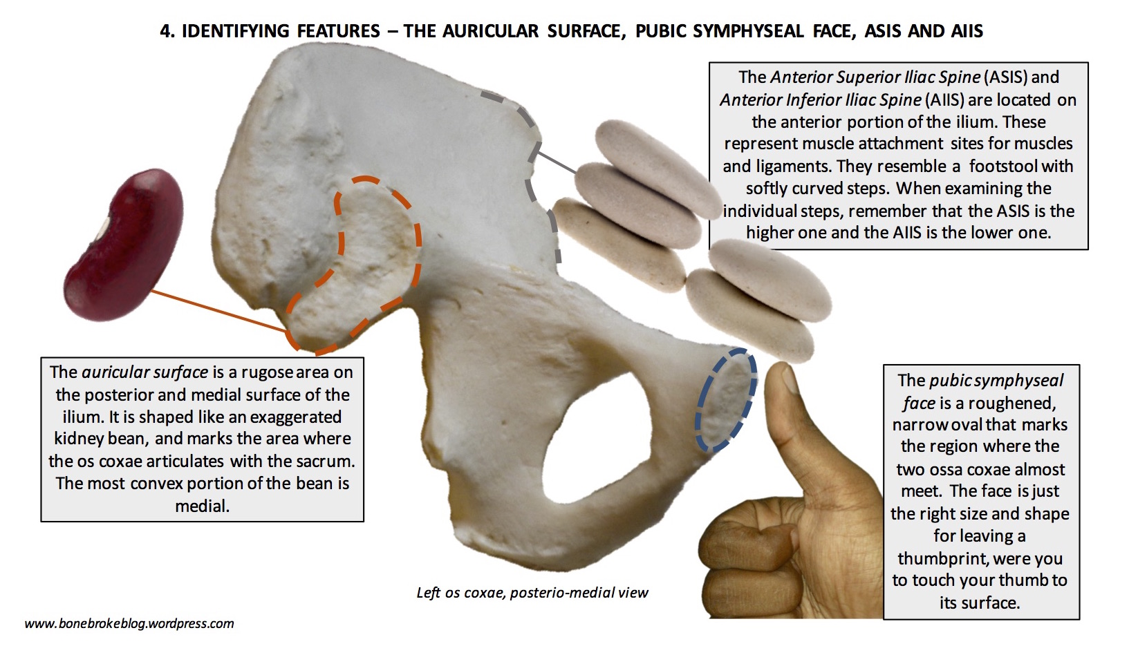 Sacrum On Attachments