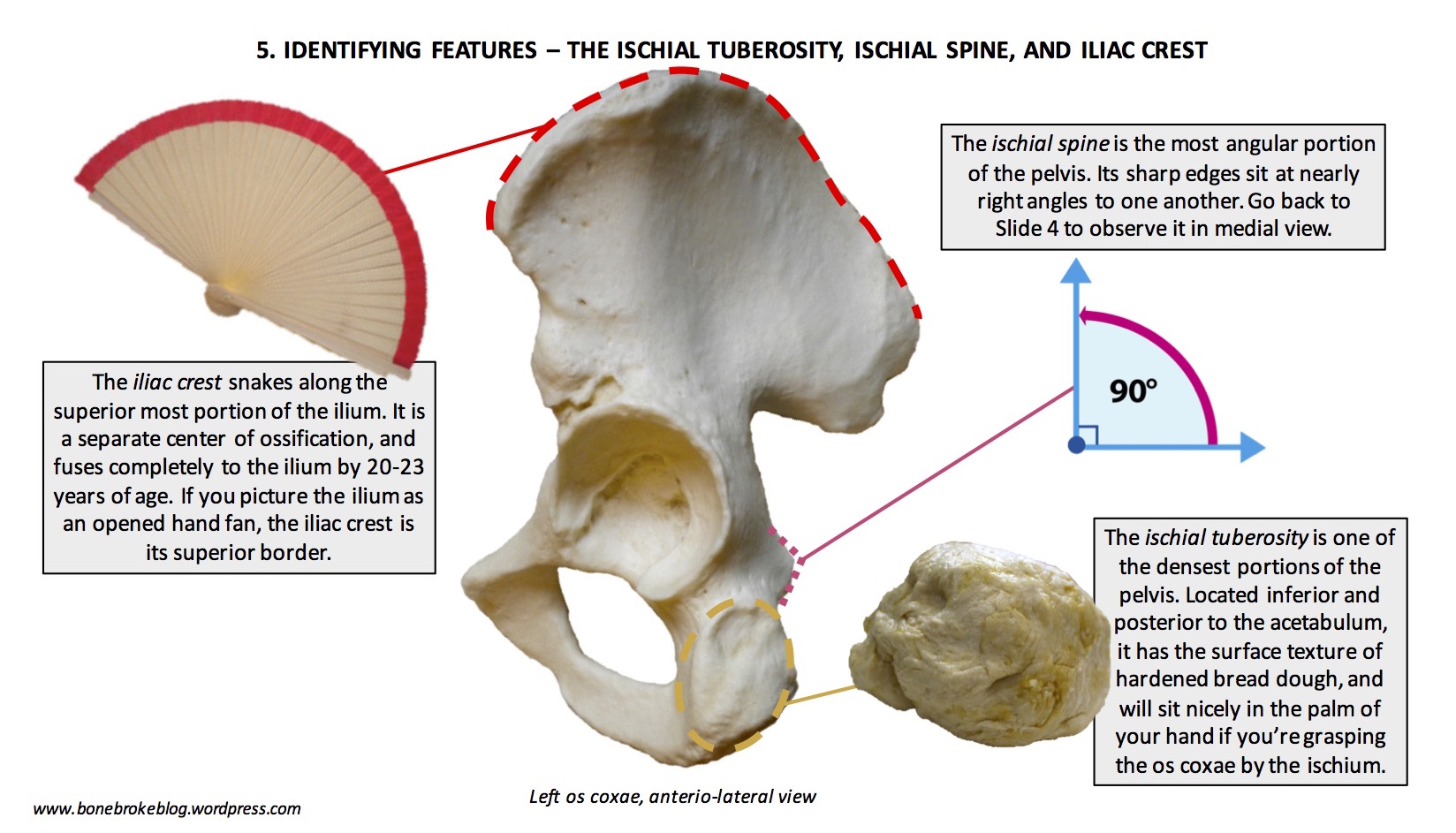 Hip Hip Hooray Orienting And Identifying Features Of The Os Coxae